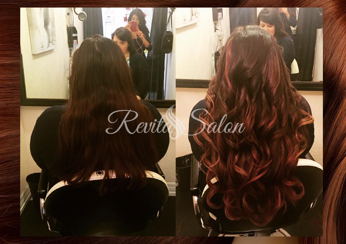 hair loss sarasota